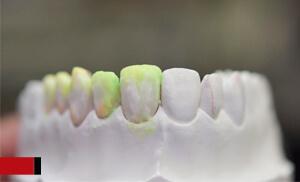 laboratorio protesico area ceramica